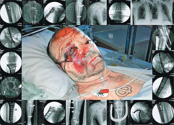 """""""Ikarus in the house of pain"""" heißt diese Arbeit, die auch die vielen Brüche zeigt, die Flatz von einem Autofahrer angetan wurden."""