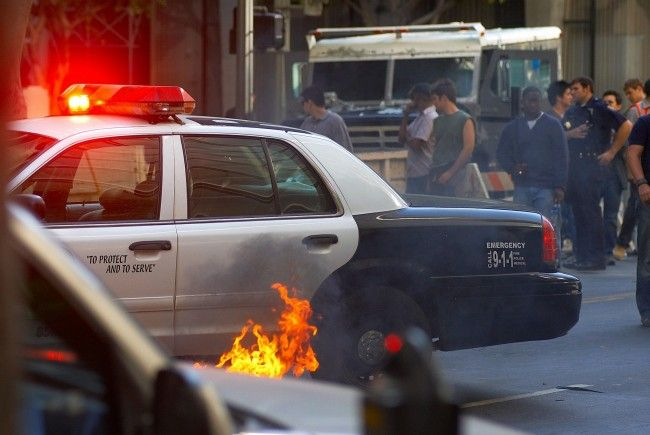 20-Jährige erlitt Verbrennungen auf mehr als der Hälfte ihres Körpers