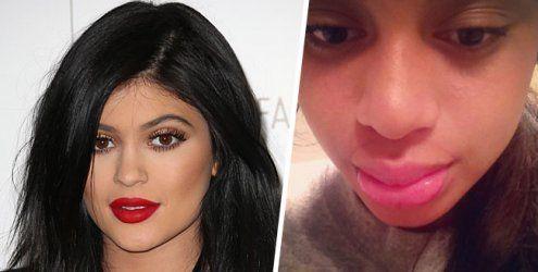 Kylie Jenner-Challenge: Internet- Hype um schmerzhafte XL-Lippen