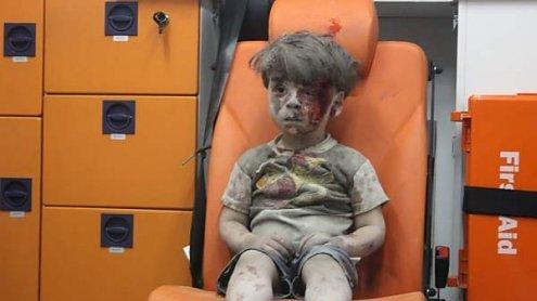 Bruder des kleinen syrischen Buben Omran gestorben