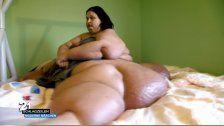Die dickste Frau der Welt - Wie sie 400 Kilo verlor